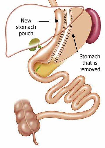 Gastric Sleeve Surgery Diagram - Sleeve Gastrectomy