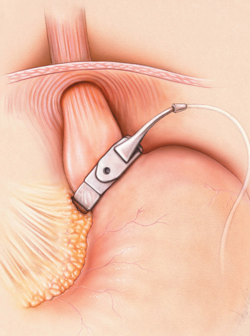 Adjustable Laparoscopic Gastric Banding