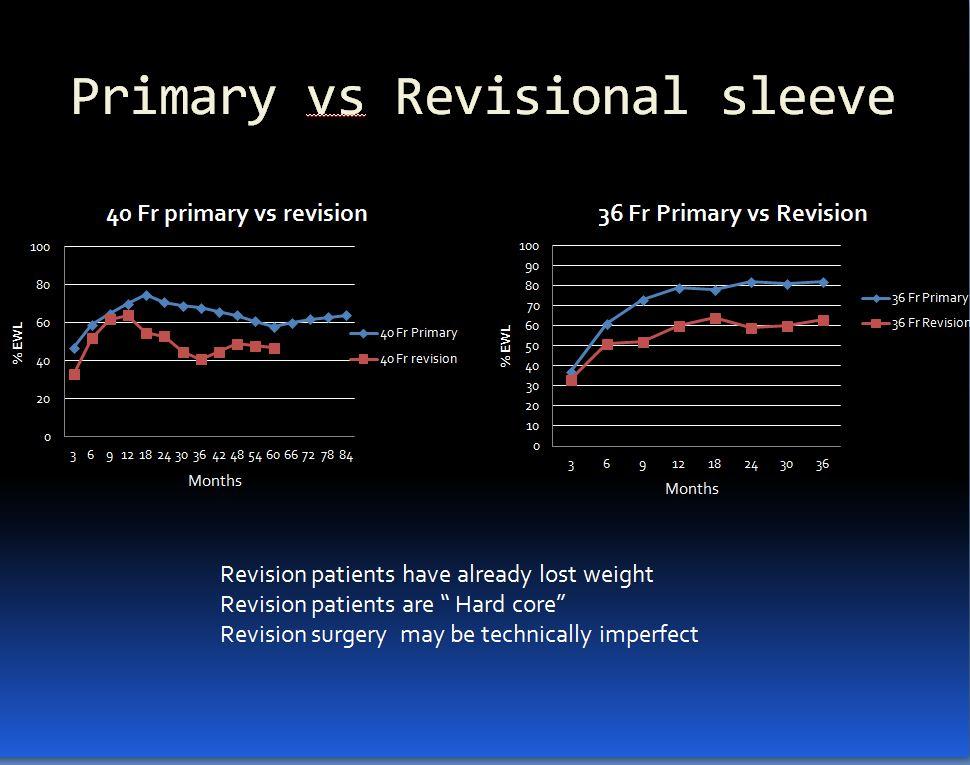 Primary vs rev