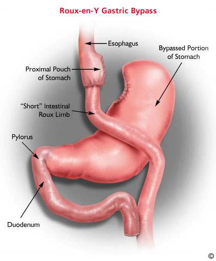 gastric bypass diagram